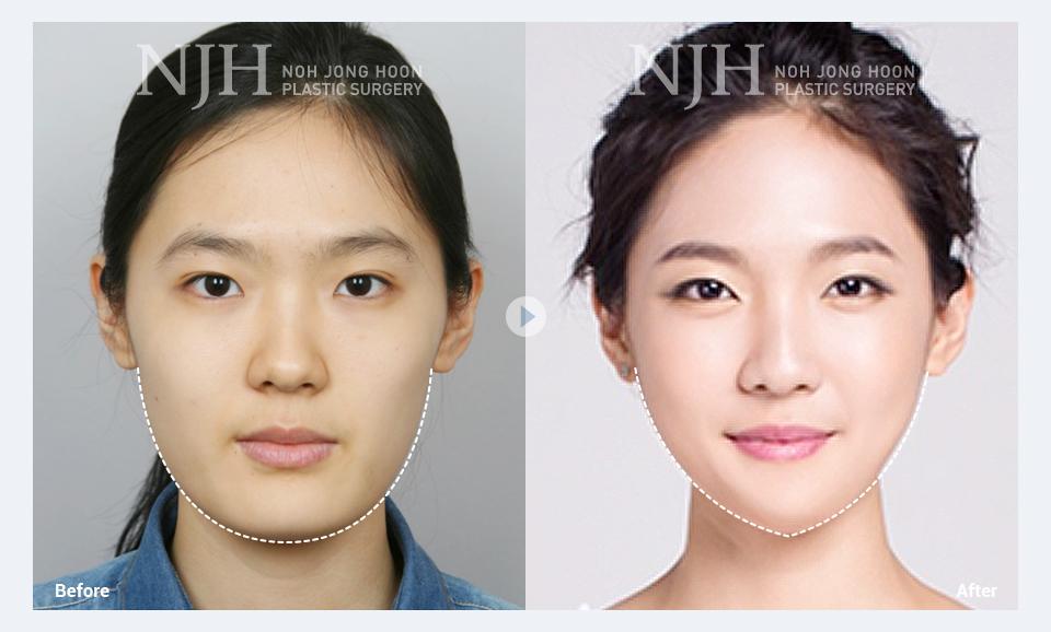 V Line Surgery Korean